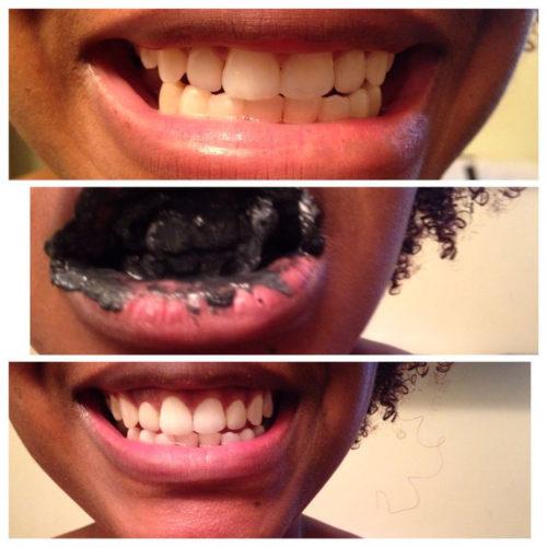 Whiter Teeth-Bamboo Toothpaste