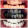 Whiter Teeth-Bamboo Toothpaste