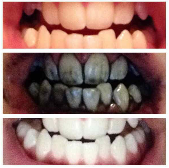 Teeth Whitening Bamboo Charcoal Toothpaste Life Changing Products