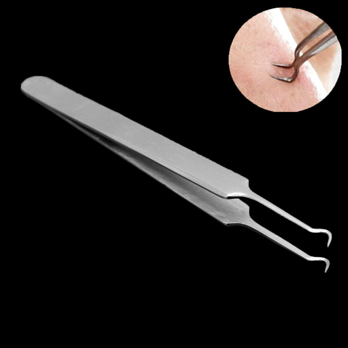 Stainless Steel Blackhead Remover