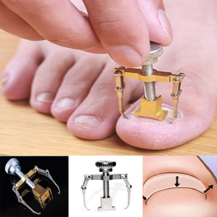 Ingrown Toenail Correction Tool