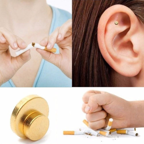 Auricular Therapy Magnets - Quit Smoking