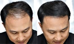 25g Keratin Hair Building Fibers
