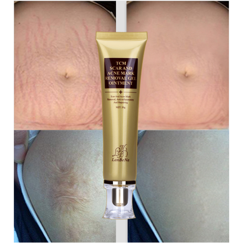 Acne Scar Removal Cream Life Changing Products