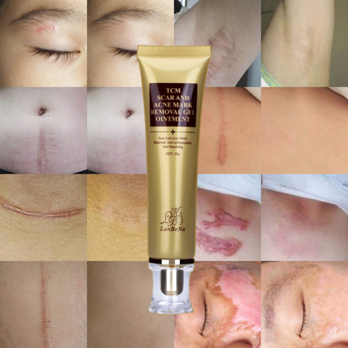 Acne & Scar Removal Cream