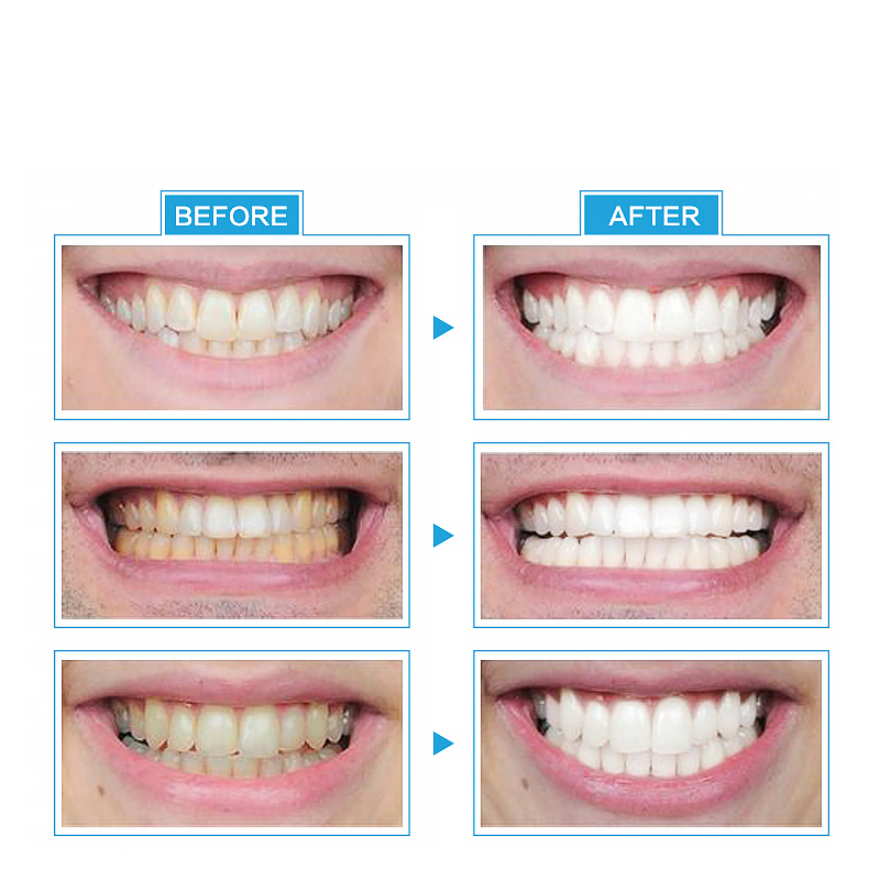 Instant Tool Beauty Light Led Teeth Whitening Life Changing Products