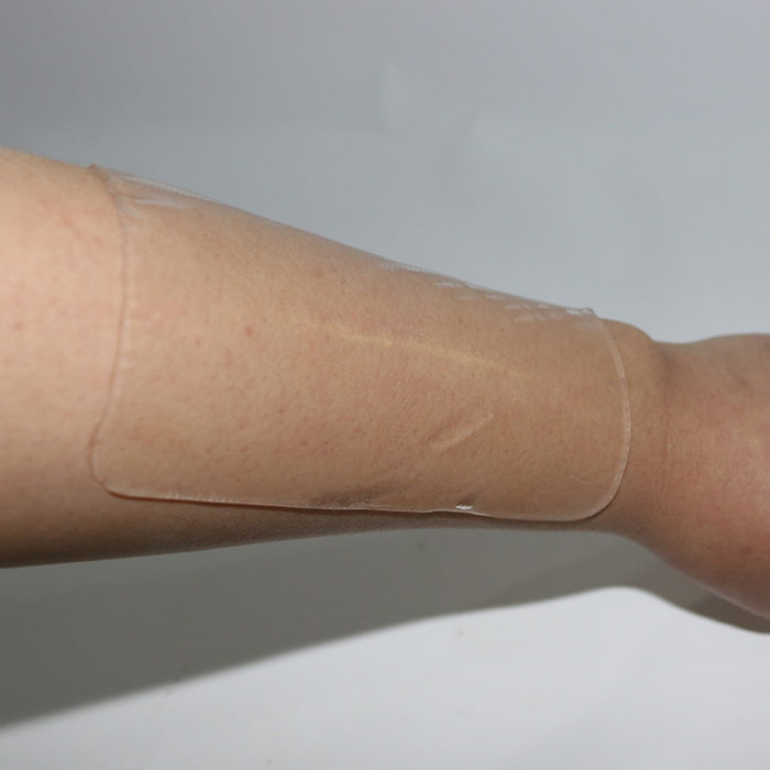 Silicone Patch Scar Removal