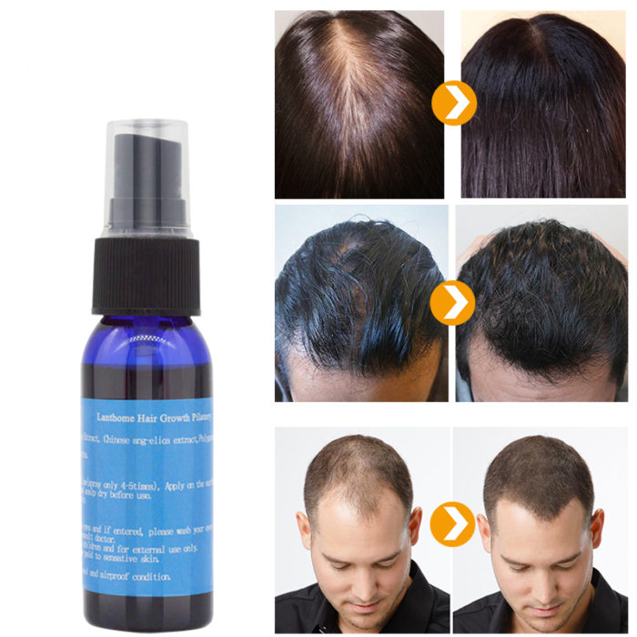 Ultimate Hair Regrowth Tonic