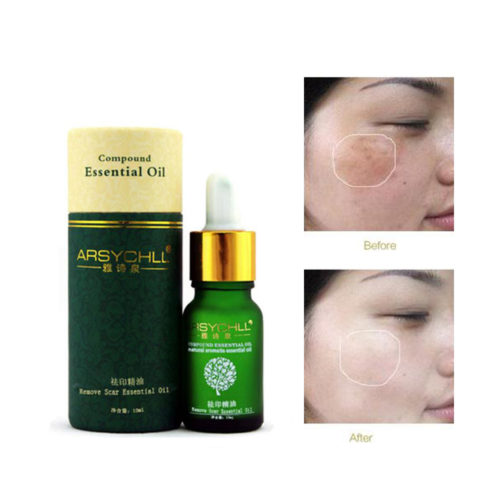 Natural Acne Scars Removal Home Remedy Oil