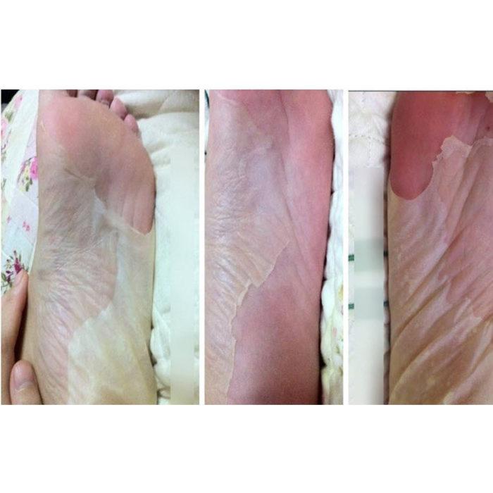Foot Peel Mask Foot Care 6pcs