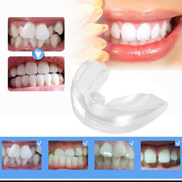 Adult Orthodontic Teeth Straightening Alignment Trainer