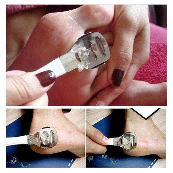 Foot Scraper Dead Skin Remover
