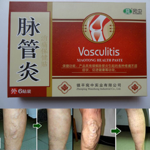 Varicose Veins Treatment Plaster