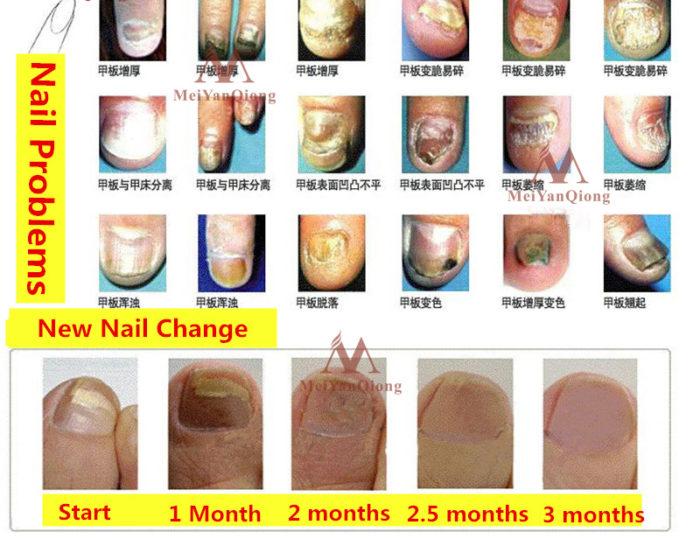 Herbal Antifungal Nail Treatment Cream