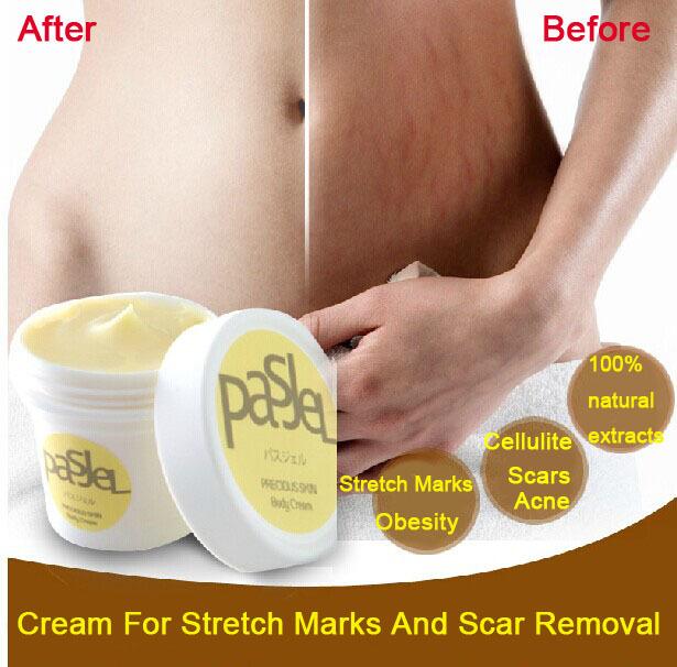 Stretchmark Removal Cream