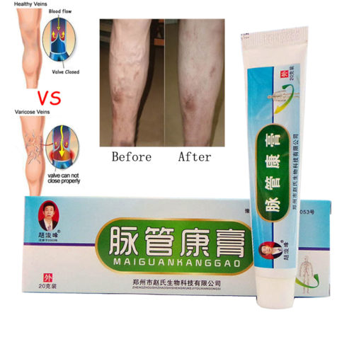 Varicose Veins Treatment Ointment