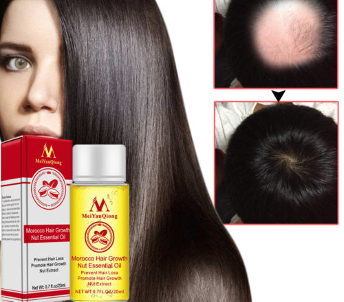 Hair Growth Serum Natural Treatment