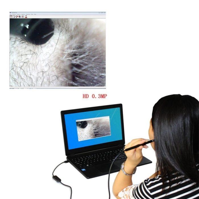 Otoscope Earpick Video Tool