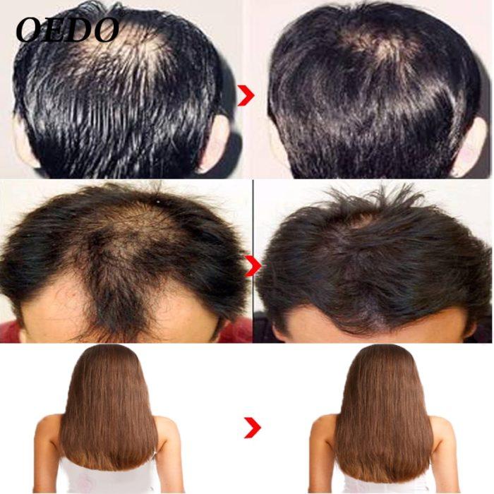 Herbal Ginseng Hair Growth Shampoo