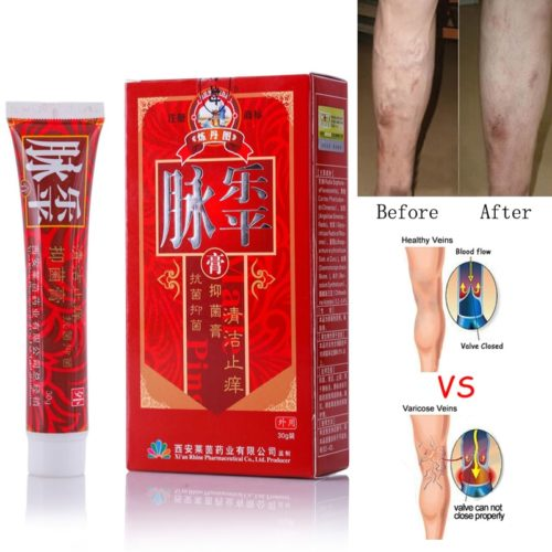 Varicose Veins Treatment Cream Herbal Formula