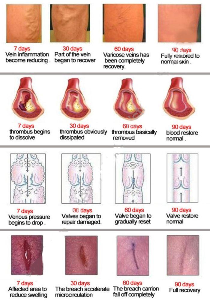 Varicose Veins Treatment Cream Herbal Formula