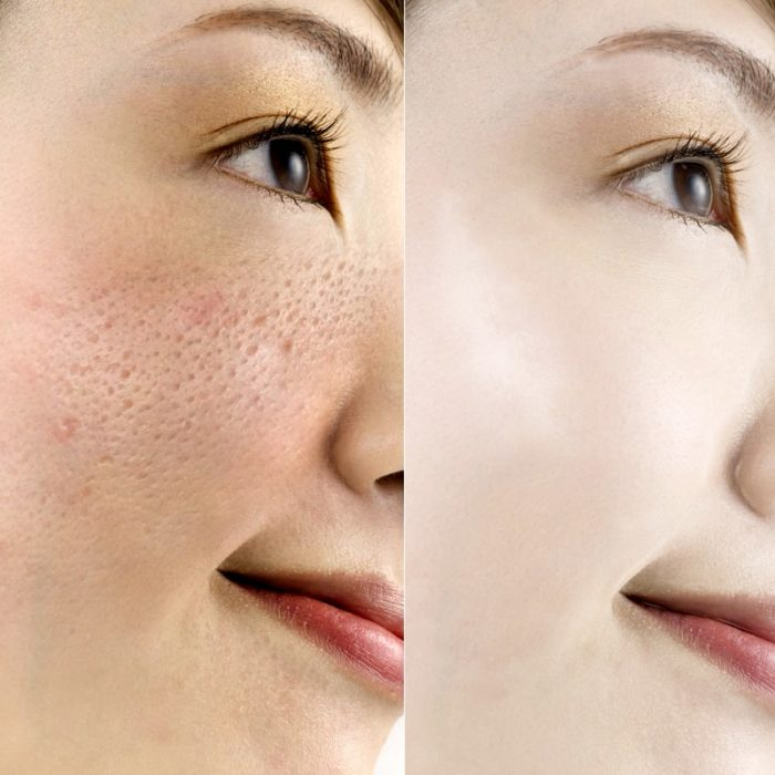 Hyaluronic Face Lifting Serum