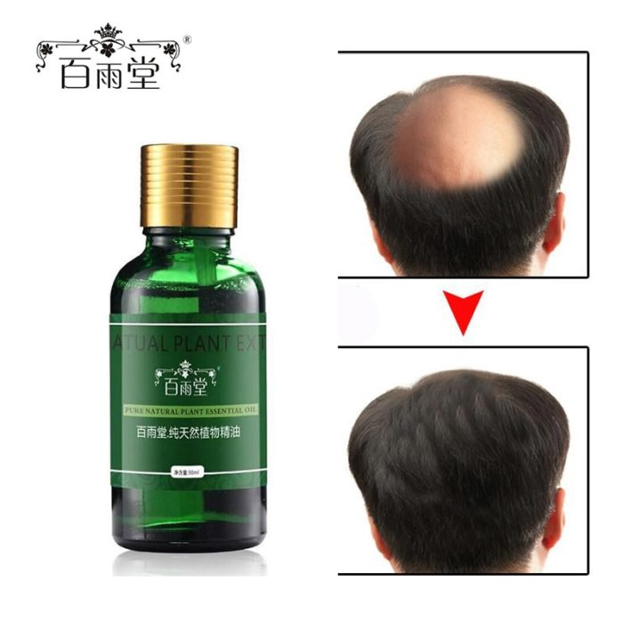 Hair Oil Treatment Health Care
