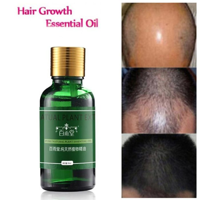 Hair Oil Treatment Health Care