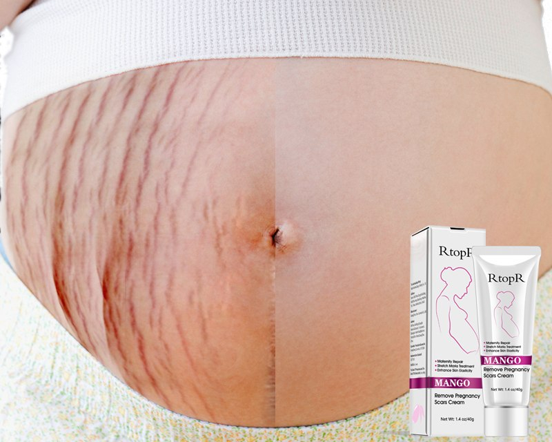 Pregnancy Stretch Mark Cream Life Changing Products