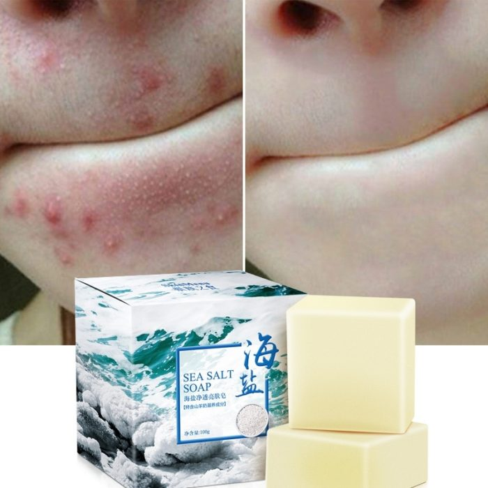Goat Milk Soap Acne Face Wash