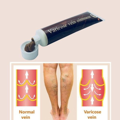 Varicose Veins Cream Ointment