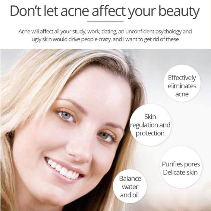 Acne Cream Facial Skin Care