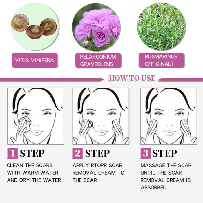 Acne Scar Cream Skin Repair