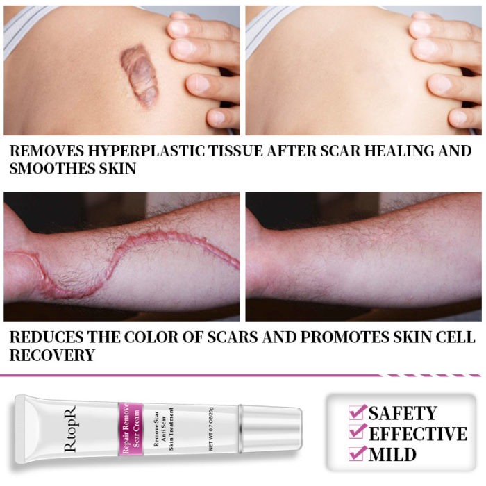 Acne Scar Cream Skin Repair Life Changing Products