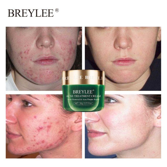 Acne Treatments Pimple Patch