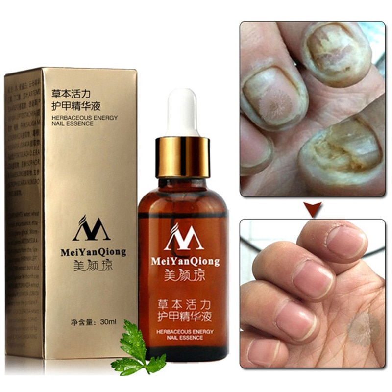 Topical Antifungal Nail Care Oil - Life Changing Products