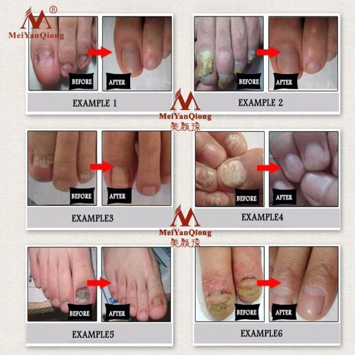 Topical Antifungal Nail Care Oil
