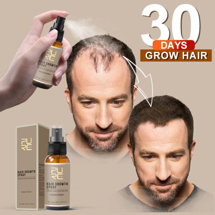 Hair Growth Spray Hair Loss Treatment