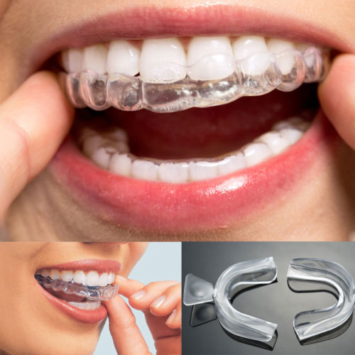 Whitening Teeth Trays 10 Pairs