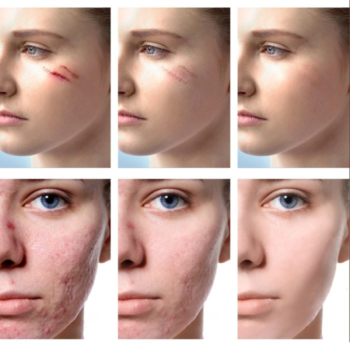 Scar Cream Acne Treatment Gel Ointment