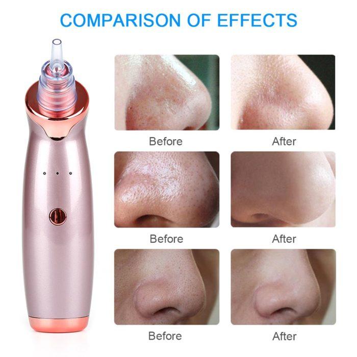 Blackhead Remover Vacuum Pore Cleanser