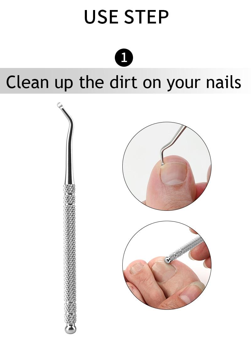 Ingrown Toe Nail Recover Correction Tool Pedicure Toenail Fixer Foot Nail Care Tool Orthotic Nail Corrector Pedicure Tool