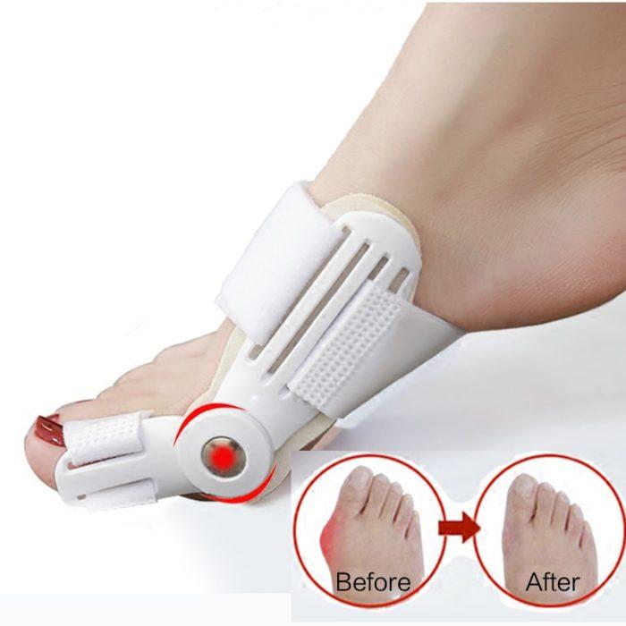 Toe Corrector Orthopedic Bone Straightener