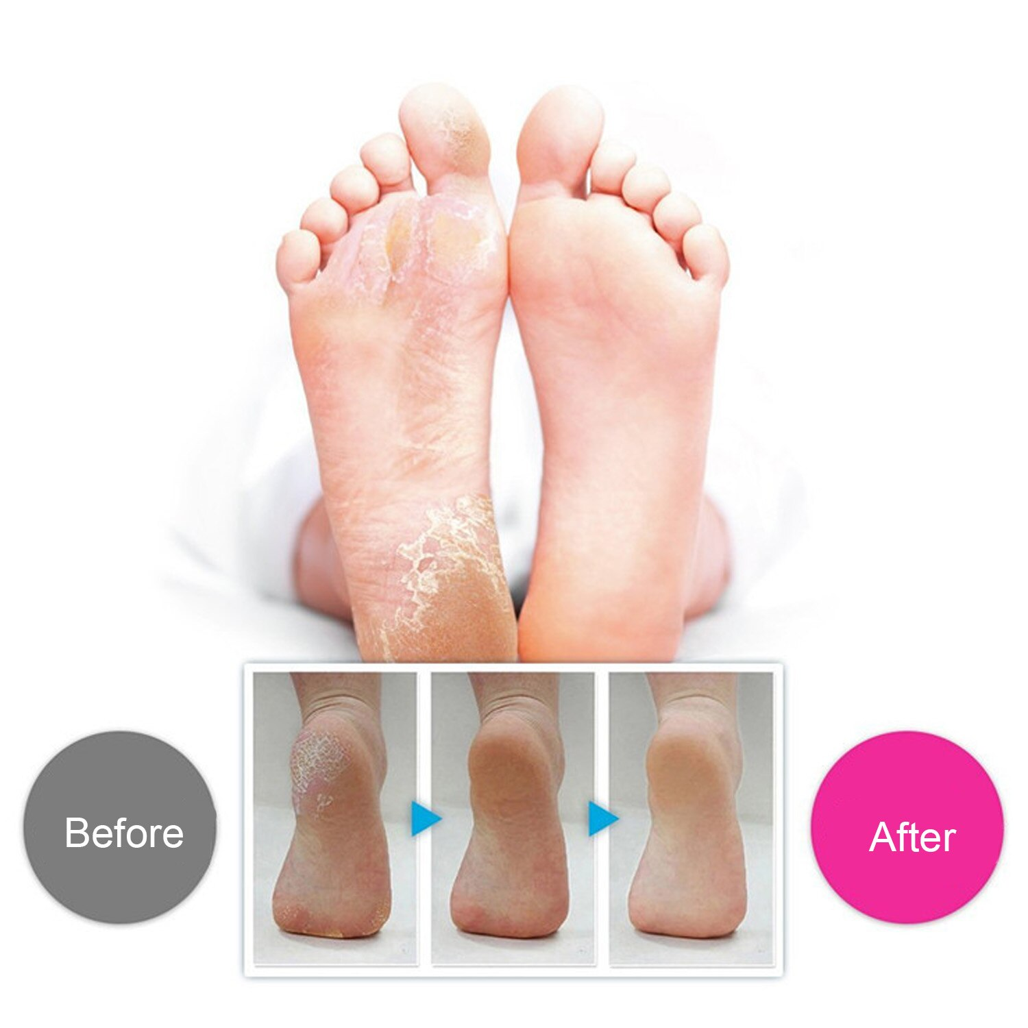 Stainless Steel Foot Shaver Callus Remover Foot Skin Shaver Corn Cuticle Cutter Remover Rasp Pedicure File Foot Dead Skin Shaver